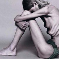 Jadłowstręt psychiczny – anoreksja